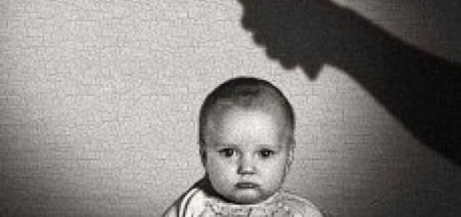 Little-Albert-testa